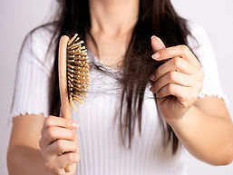 Female_Hair_loss.jpg