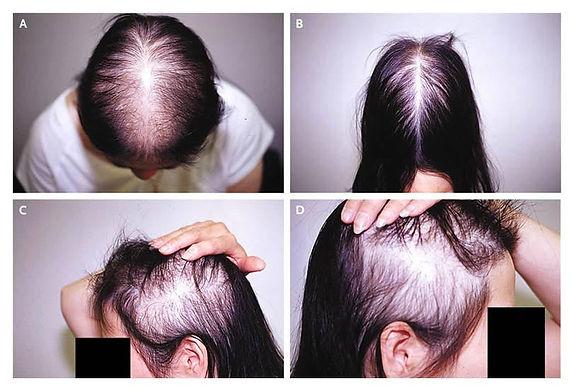 4 pic of woman losing hair.jpeg