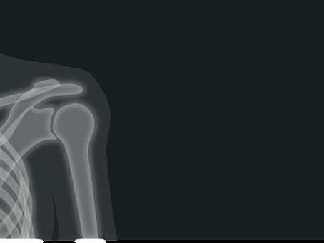Μερική ρήξη Στροφικού Πετάλου του Ώμου. Αντιμετώπιση χωρίς χειρουργική επέμβαση.