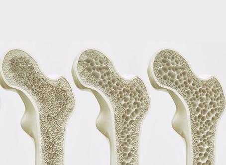 Γενικοί κανόνες και Φυσικοθεραπεία στην Οστεοπόρωση