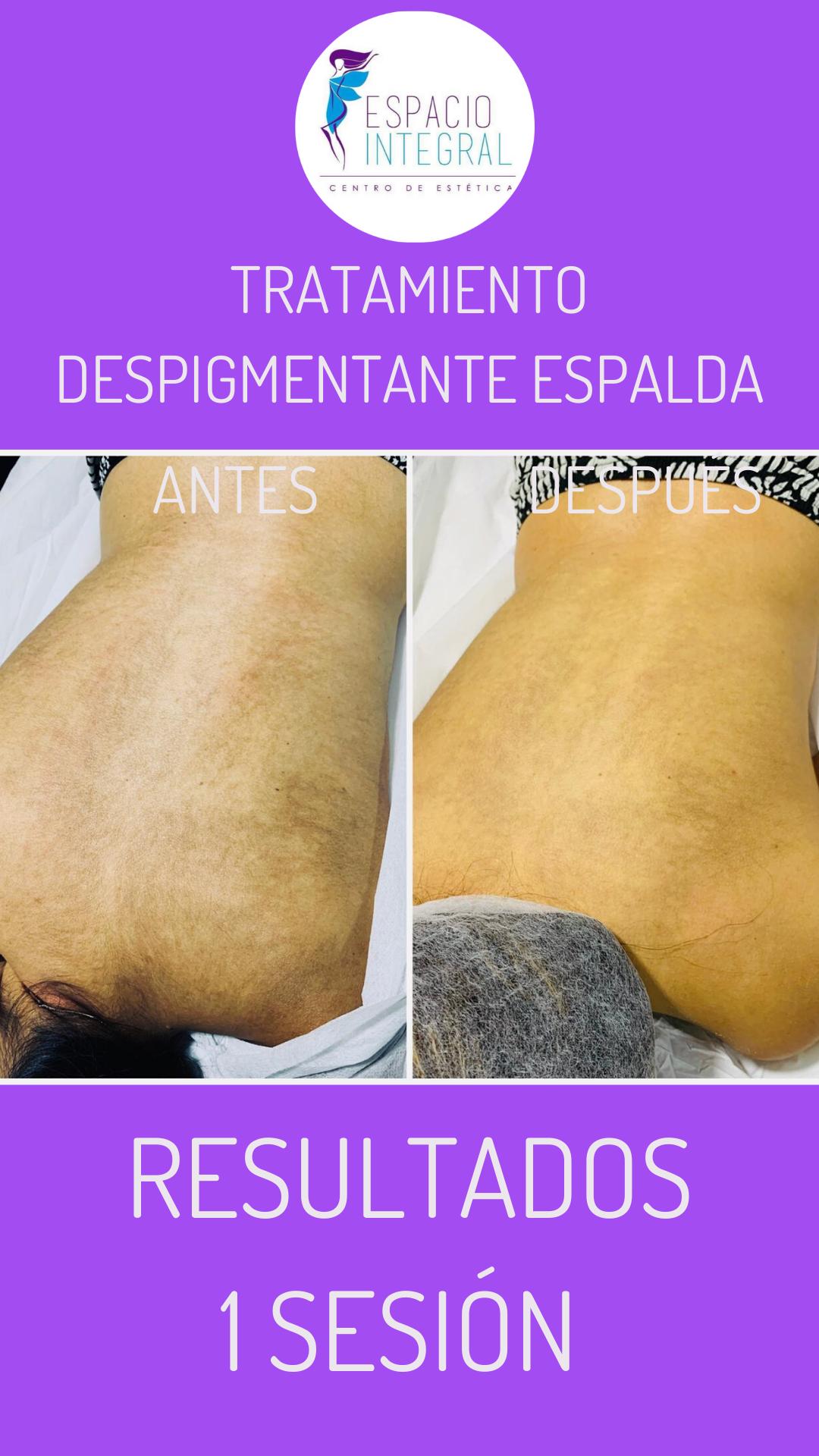 Despigmentación_de_Manchas_en_Espalda.