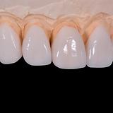 dental-2036945.png