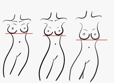 O que é implantação mamária? A sua é alta, média ou baixa?