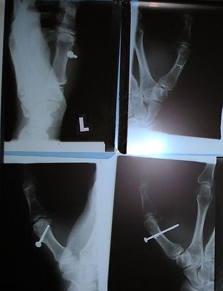 Schuss eines Nagels in den Daumen mit einem Tacker. Röntgenbilder vor und nach Entfernung des Nagels. Metallrest im Daumen, der operativ entfernt wurde.