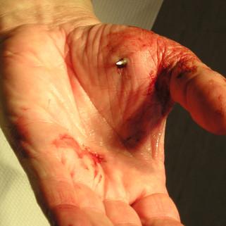 Nagelverletzung der Hand