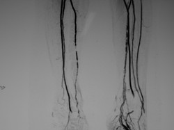 Arteriosklerose Unterschenkel 02