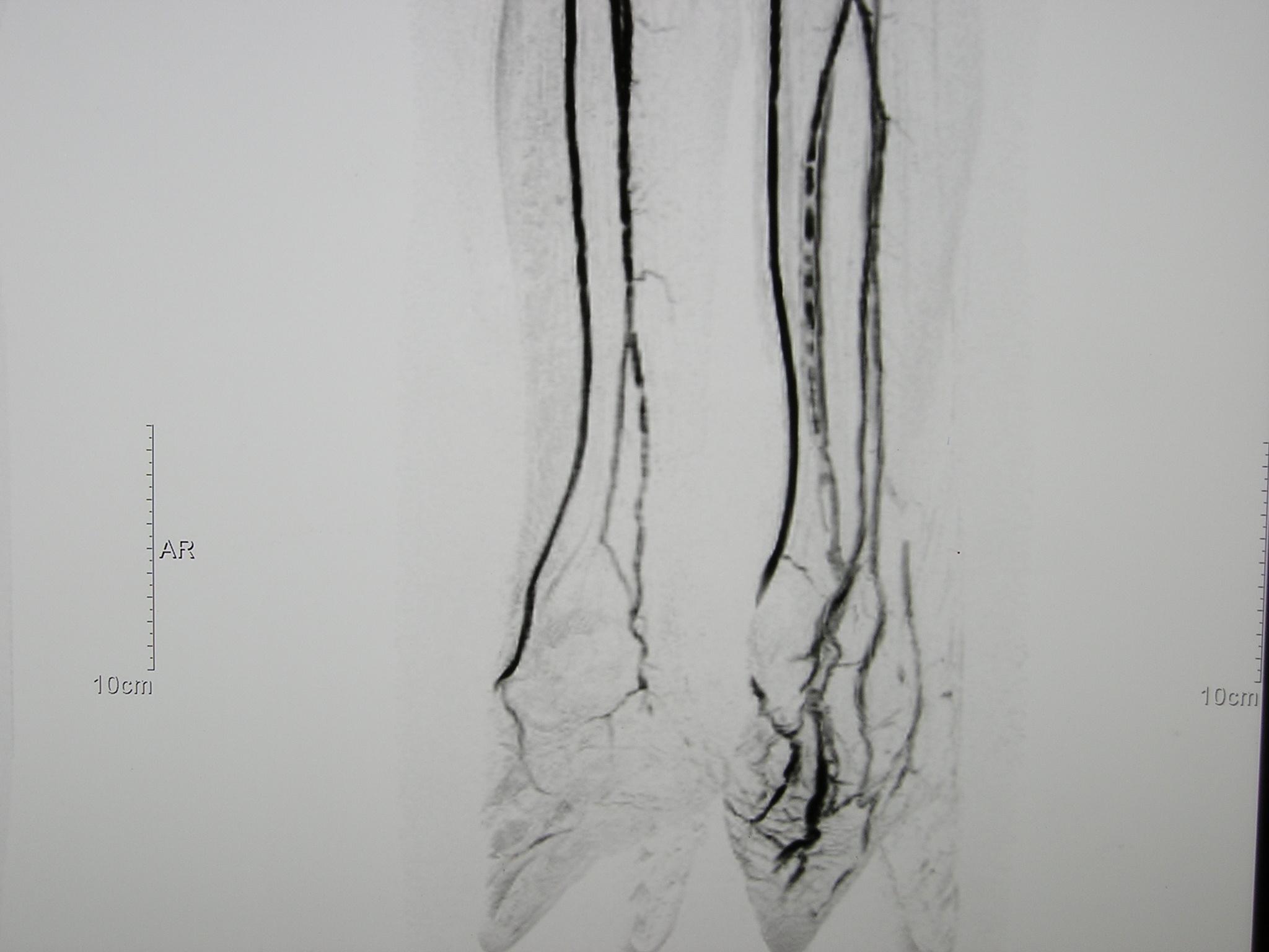 Arteriosklerose Unterschenkel