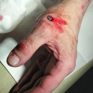 Verletzung der Hand durch Nagel