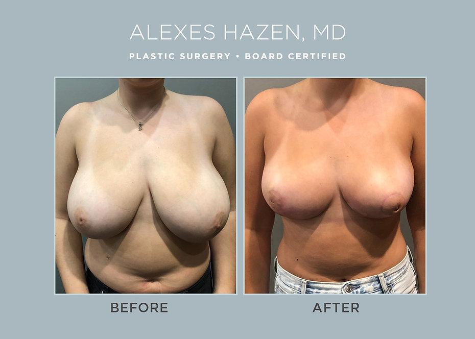Alexes Hazen Md Breast Reduction.jpg