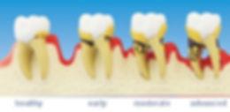 periodontitis_progression_m.jpg