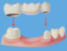 Dental-Bridge.png