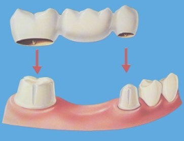Dental-Bridge.png