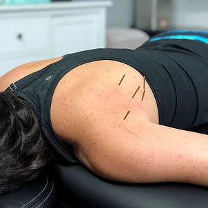 Dry Needling Shoulder Therapy.jpg