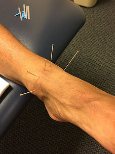 Dry Neeeling Ankle Therapy.jpg