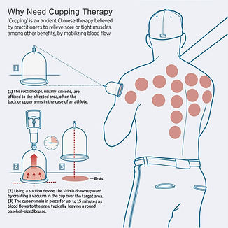 Cupping Chart for Therapy.jpg