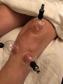 Cupping Knee Therapy.jpg