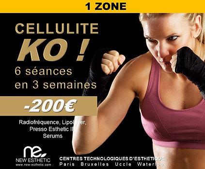 Parcours KO Cellulite 1 Zone