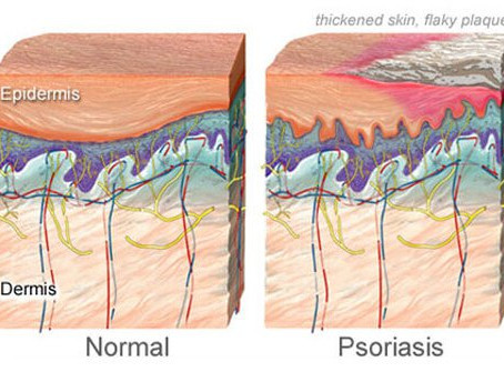 Bowen Technique vs Psoriasis