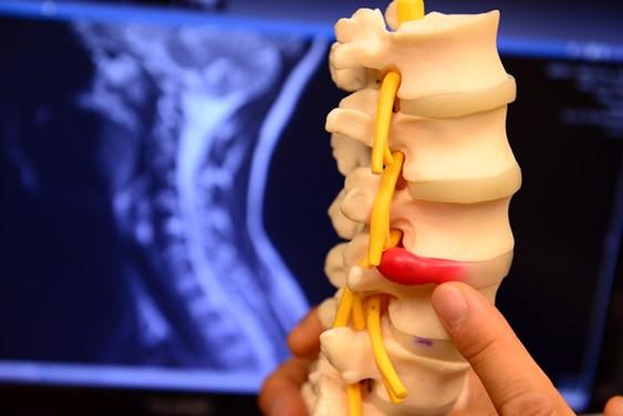 lumbar disc treatment