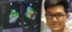 Dr Liang-Han Ling, Cardiologist and Electrophysiologist