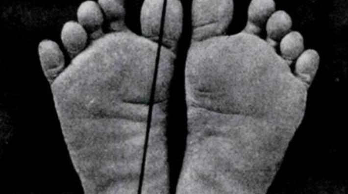 О стопах людей, ходящих босиком и влиянии обуви