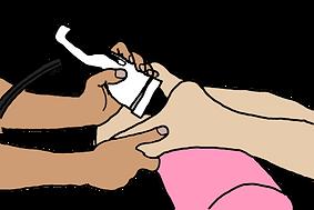 足底筋膜炎,川田整形外科,体外衝撃波,ESWT