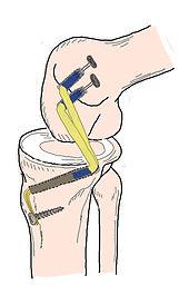 川田整形外科,後十字靭帯,手術,関節鏡