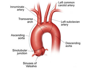 1-asc-aorta-labeled-pt-guide-320-240-201