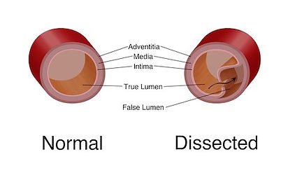 dissection-tear-crosssection_edited.jpg