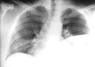 L diaphragm.jpg