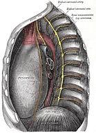robotic sympathectomy