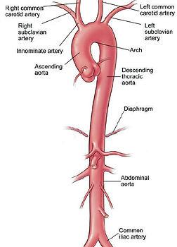 aortic-aneurysm-aorta-anatomy.jpg