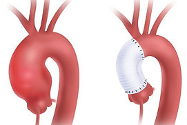ascending aortic surgery_edited.jpg