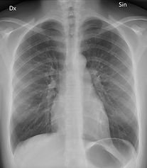 Normal_posteroanterior_(PA)_chest_radiog