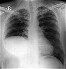 R diaphragm.jpg