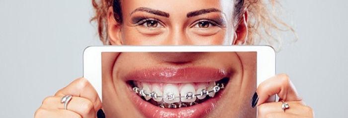 Ortodonzia a Londra