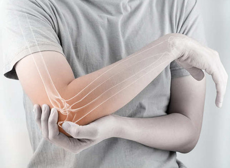 Boron for Arthritis & Bone Strength
