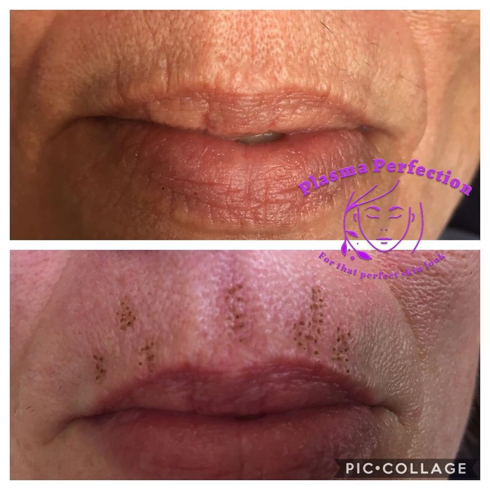 Lips Lines