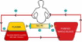 PreeclampsiTAC-PE diagram