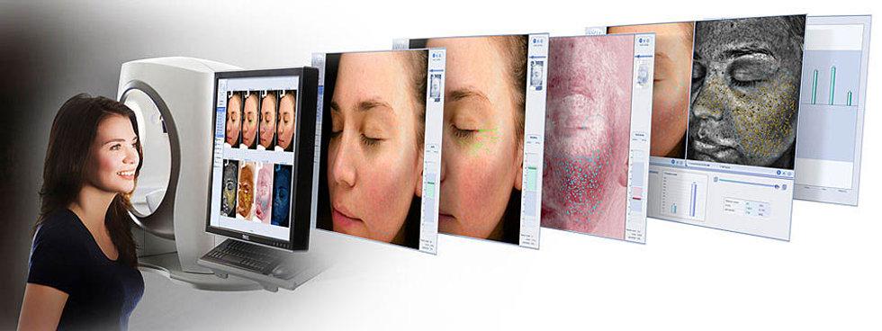 Renewal-Skin-Spa-Canfield-VISIA.jpg