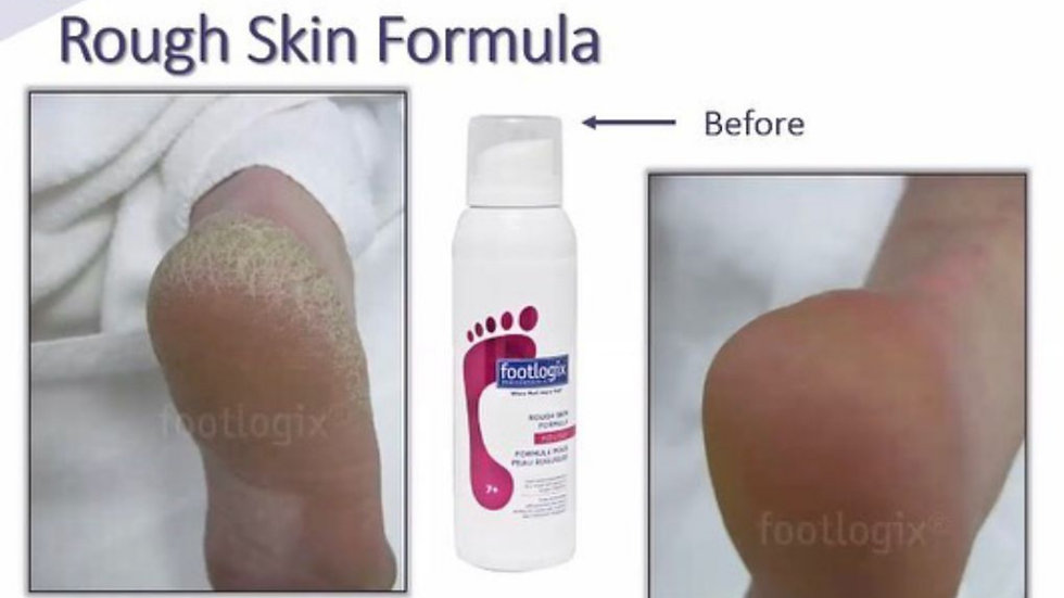 Rough Skin Formula