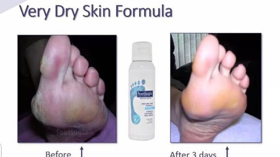 Very Dry Skin Formula