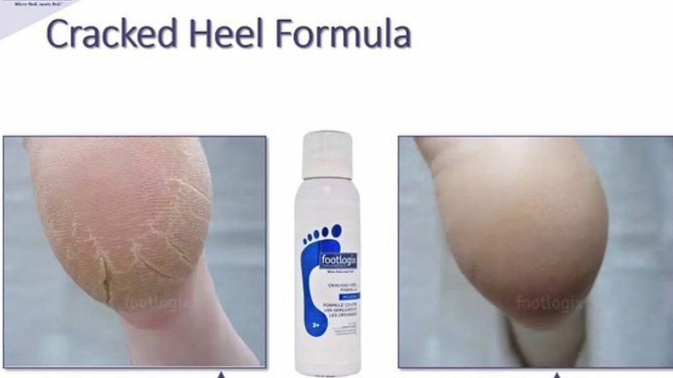 Footlogix Cracked Heel Formula