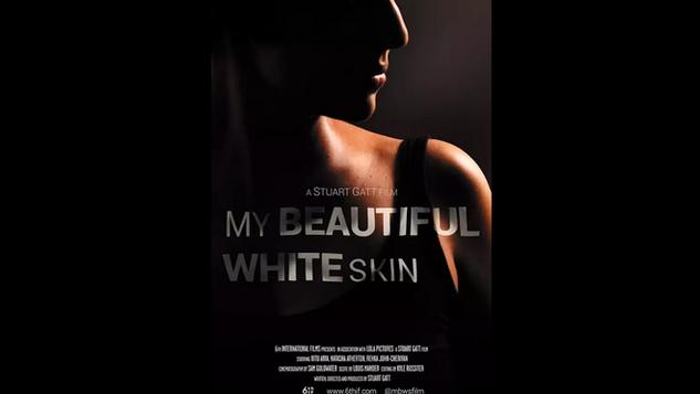 My Beautiful White Skin