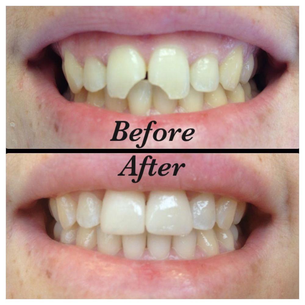 Repair of fractured teeth