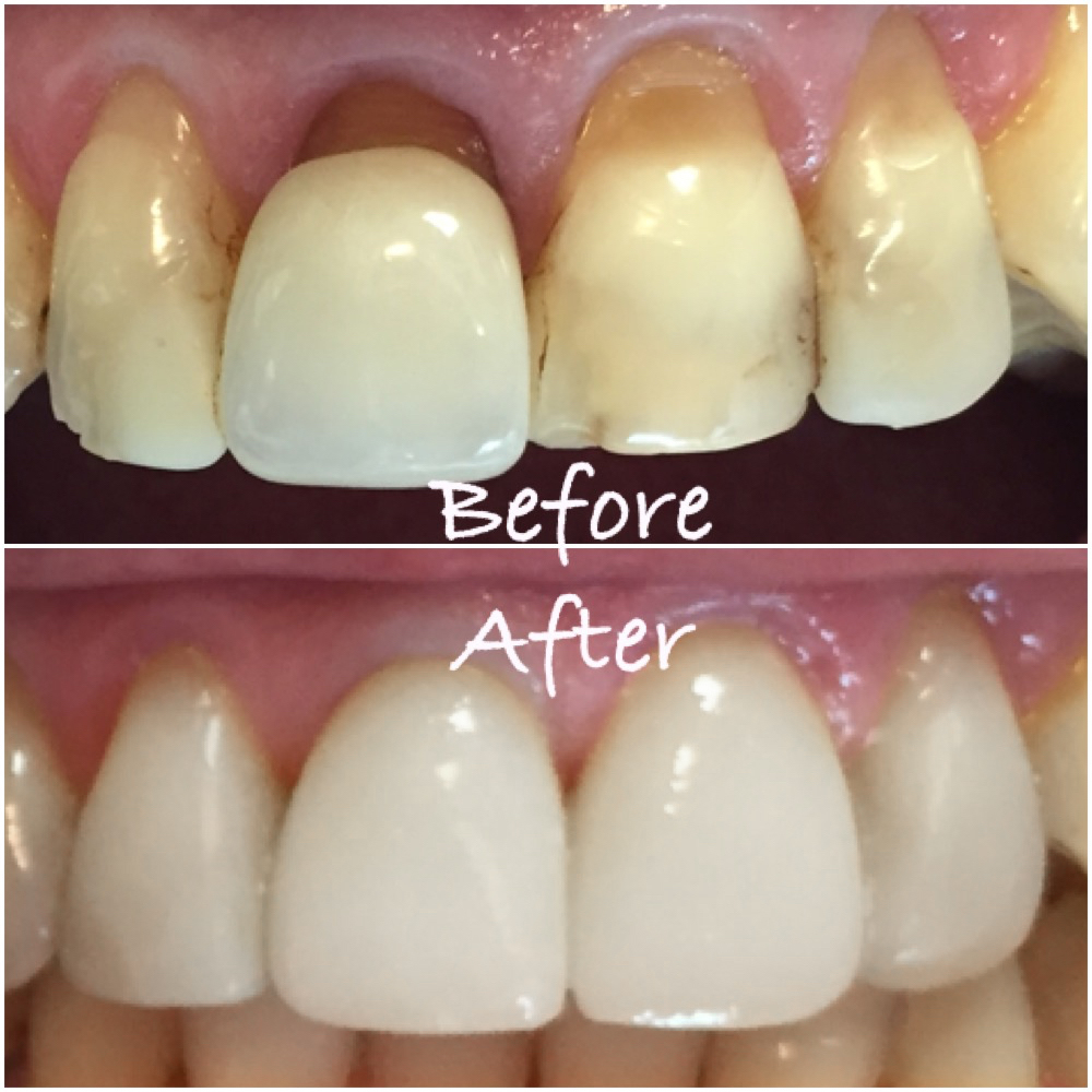 before after for steph