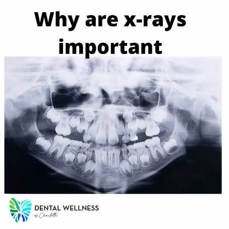 Why X-rays are important?