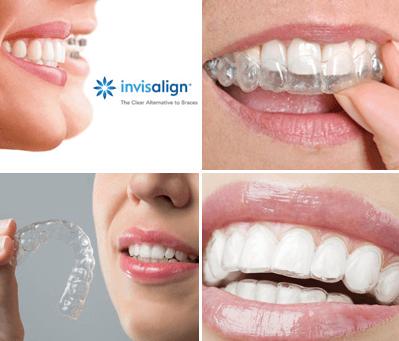 Les Traitements d'Orthodontie Esthétique Invisalign au Cabinet d'Orthodontie du 95 - Montmorency