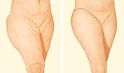 Outer Thigh Incision