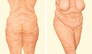 Body Lifit Incision